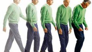 Morbo di Parkinson - Sintomi